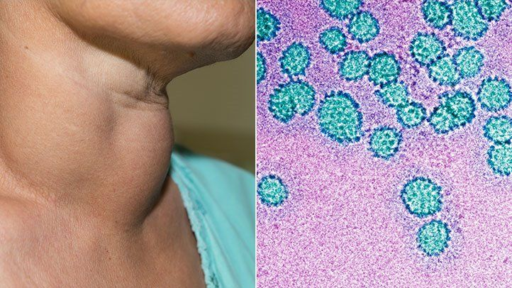 hpv related head and neck cancer hpv virus is there a cure
