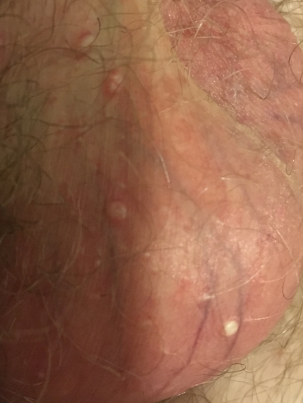 hpv wart popped