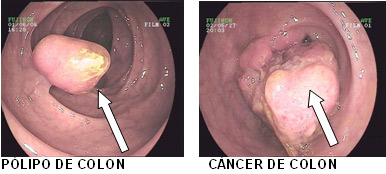 cancer de colon no polipos)