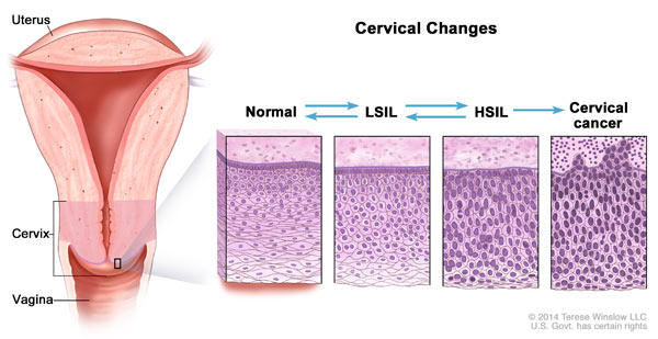 hpv causes abnormal cells)