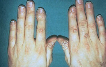 What causes a wart virus, Hpv virus causes warts. hhh | Cervical Cancer | Oral Sex