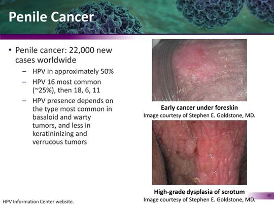 hpv 18 and penile cancer)