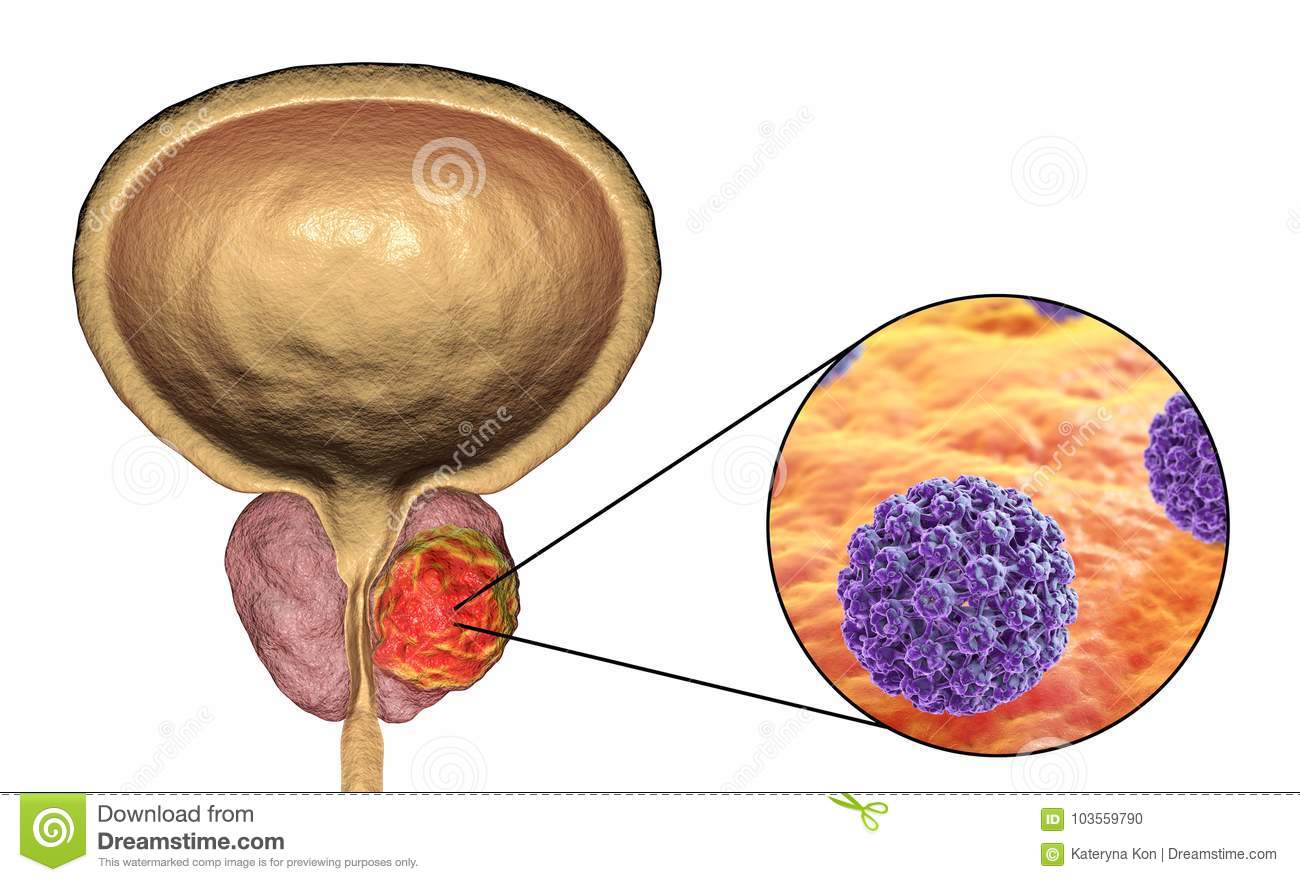 are bladder papillomas cancerous
