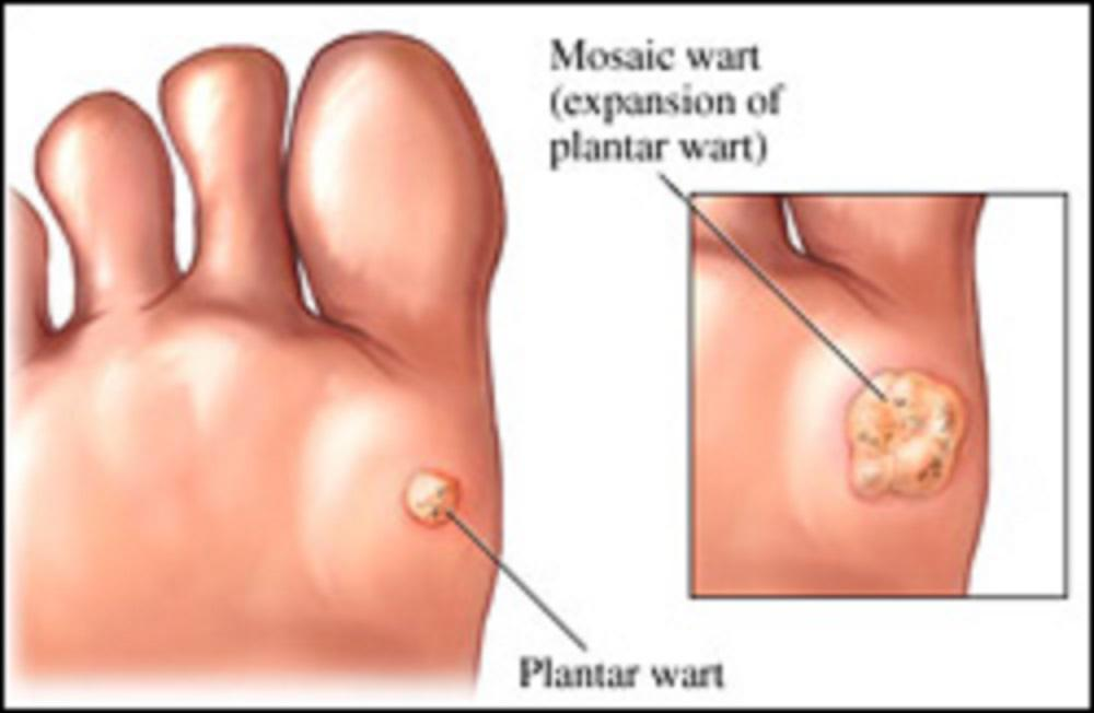 what causes hpv virus warts)