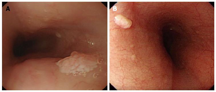 Esophagus cancer hpv, Esophageal cancer hpv Case Report