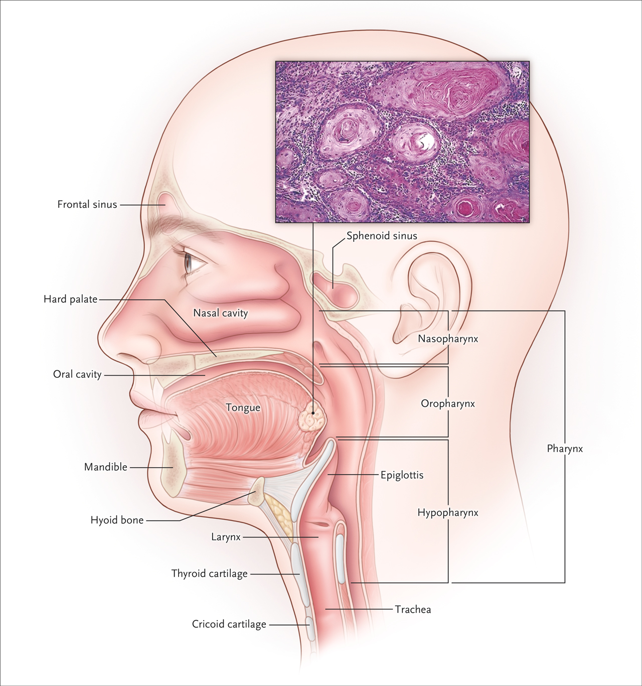 Hpv head and neck cancer recurrence. Înțelesul