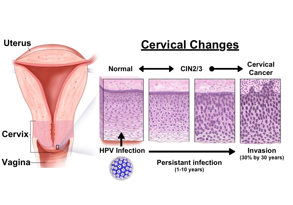 cancer colon transverse symptoms cancer endocrine therapy