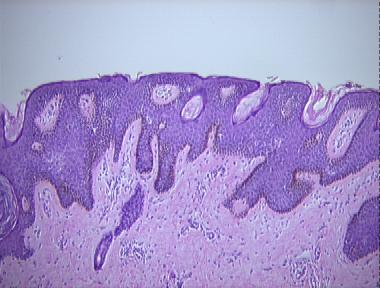 Confluent and reticulated papillomatosis minocycline dose. Gastric cancer pathology