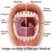 hpv mouth and throat symptoms