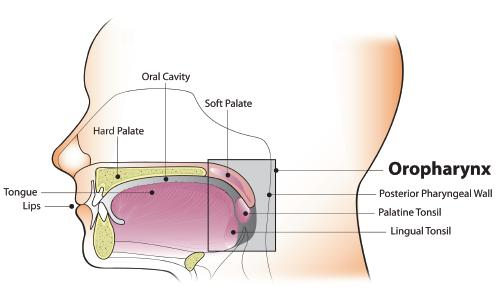 how fast does hpv throat cancer grow)