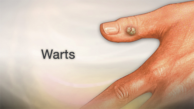 Warts on hands in pregnancy - aquaventuredivingcenter.ro Warts on hands after pregnancy