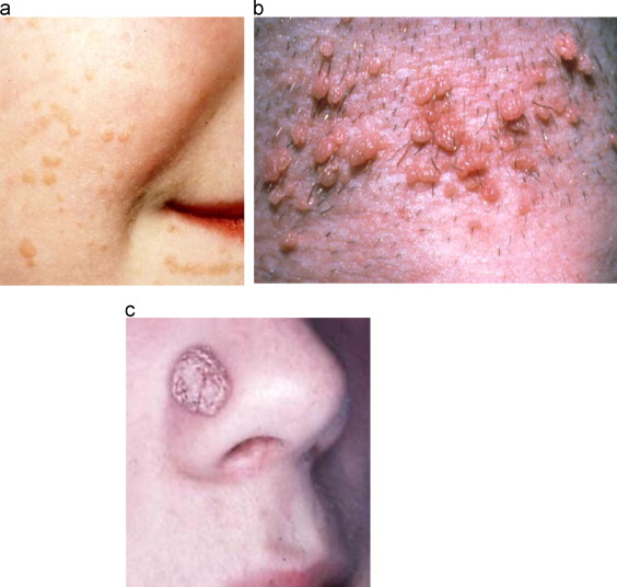 Human papillomavirus 52 positive squamous cell carcinoma of the conjunctiva - Papilloma lesion skin