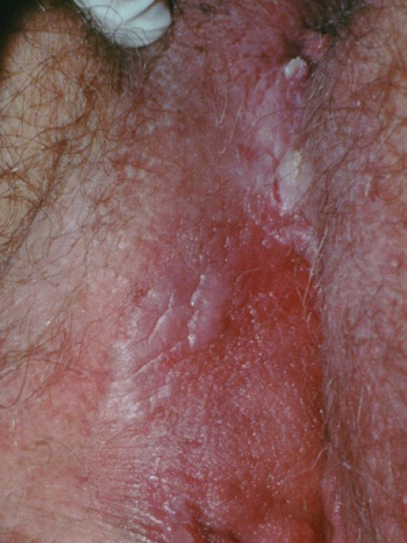 hpv wart itchy)