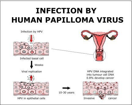 hpv cancer meaning)