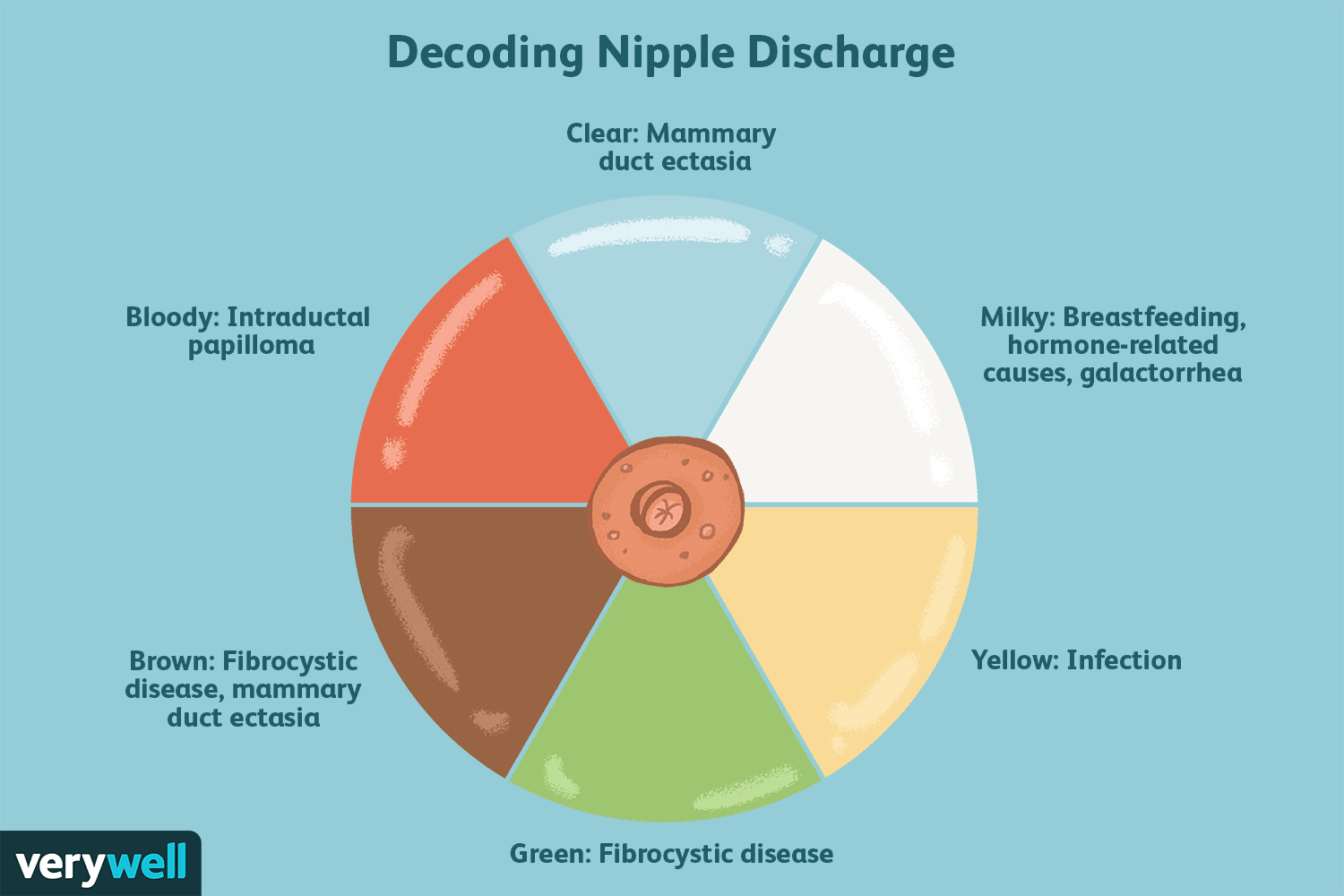 intraductal papilloma discharge color)