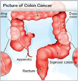 cancer colon transverse symptoms