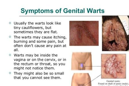 Hpv warts vs cancer, Hpv that causes genital warts does not cause cancer