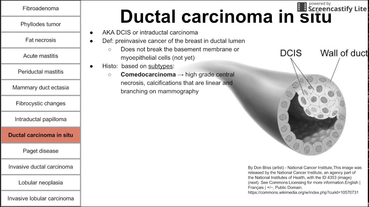 Mammary duct ectasia vs intraductal papilloma
