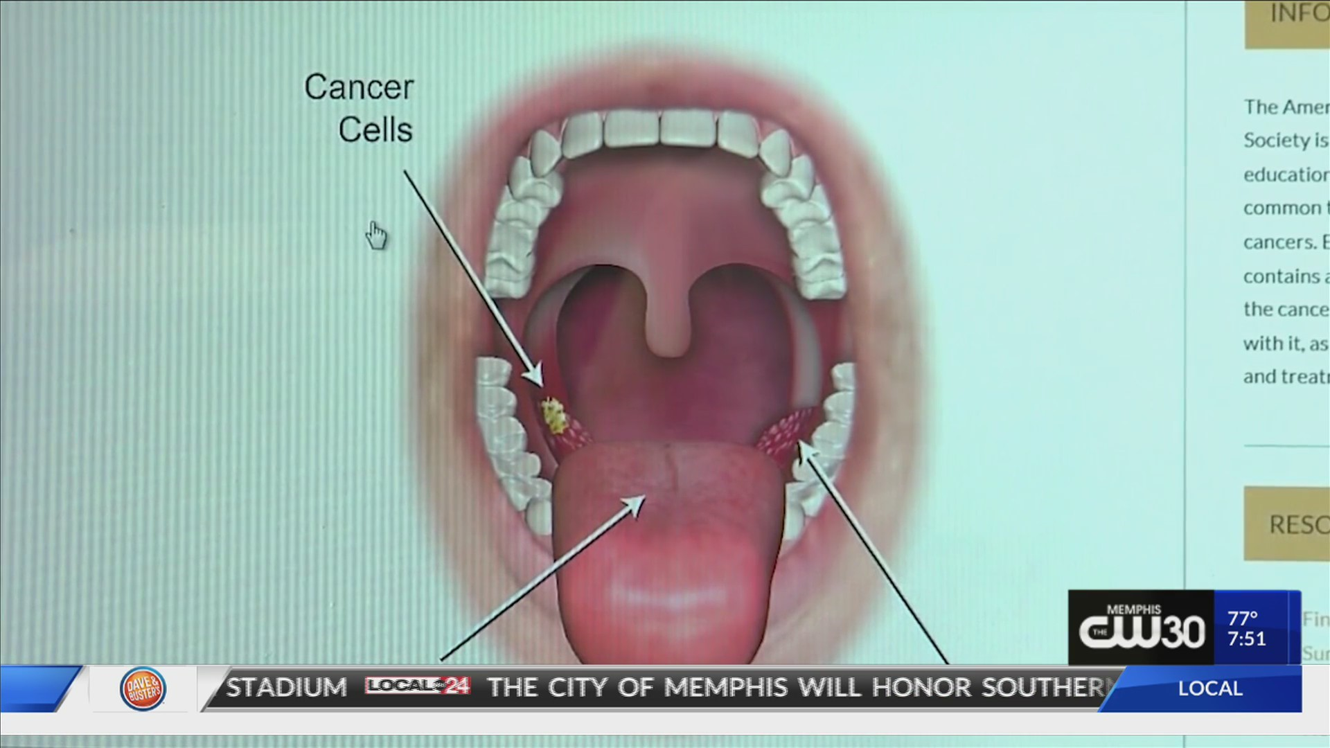 can hpv throat cancer come back)