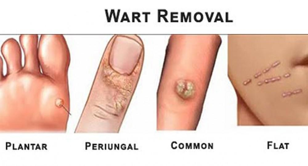 hpv causes common warts)