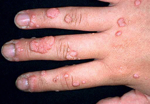 warts on hands in adults)