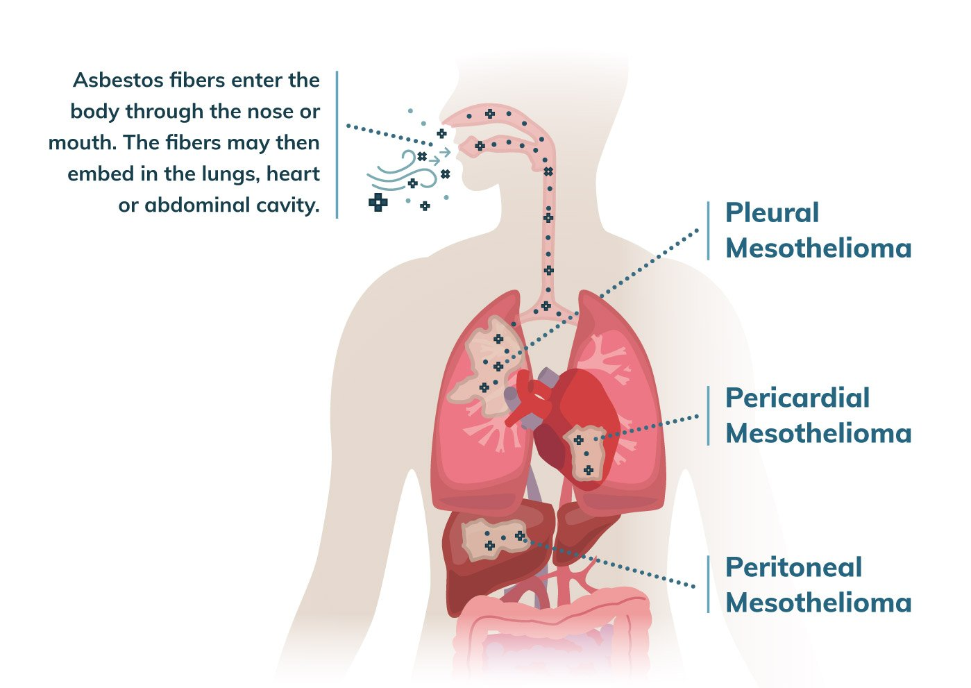 peritoneal cancer from asbestos
