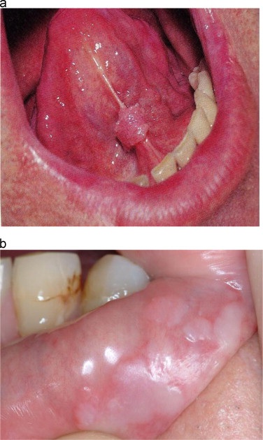 papilloma lesion in mouth)