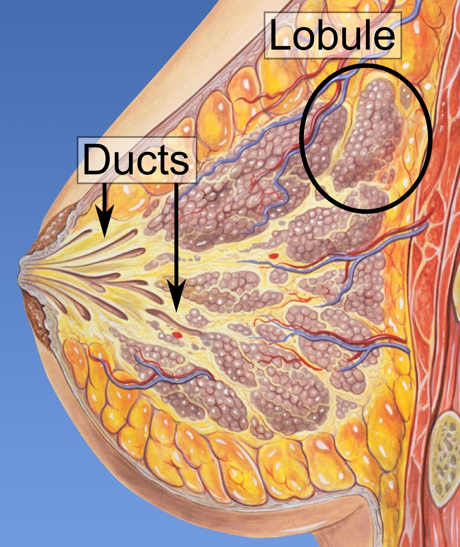 ductal papilloma means