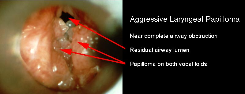 What causes papilloma on vocal cords - Whats laryngeal papillomatosis
