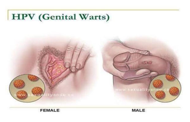 what causes hpv virus warts care a născut negi genitale