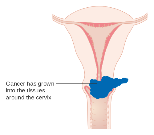 Will hpv cause ovarian cancer - aquaventuredivingcenter.ro