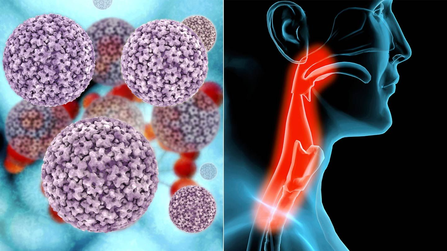 can hpv virus cause throat cancer)