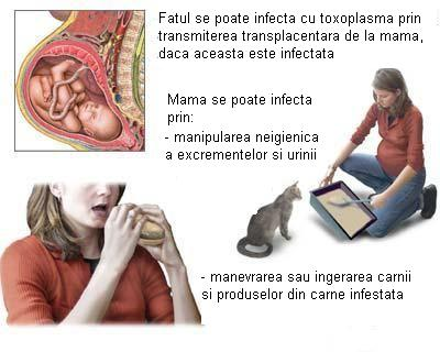 toxoplasmoza in sarcina simptome warts treatment medscape