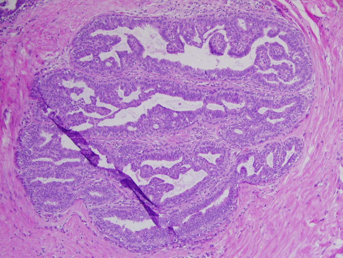 squamous cell papilloma histopathology)