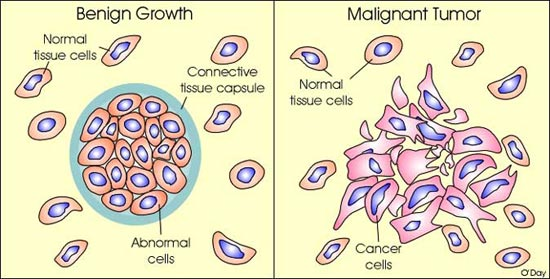 cancer and benign tumour)