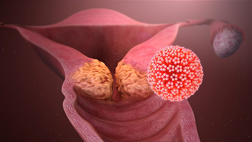 hpv cancer gorge