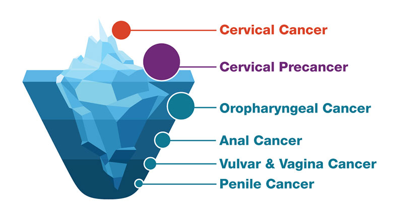 Hpv vaccine is cancer prevention cdc, Hpv and cancer cdc