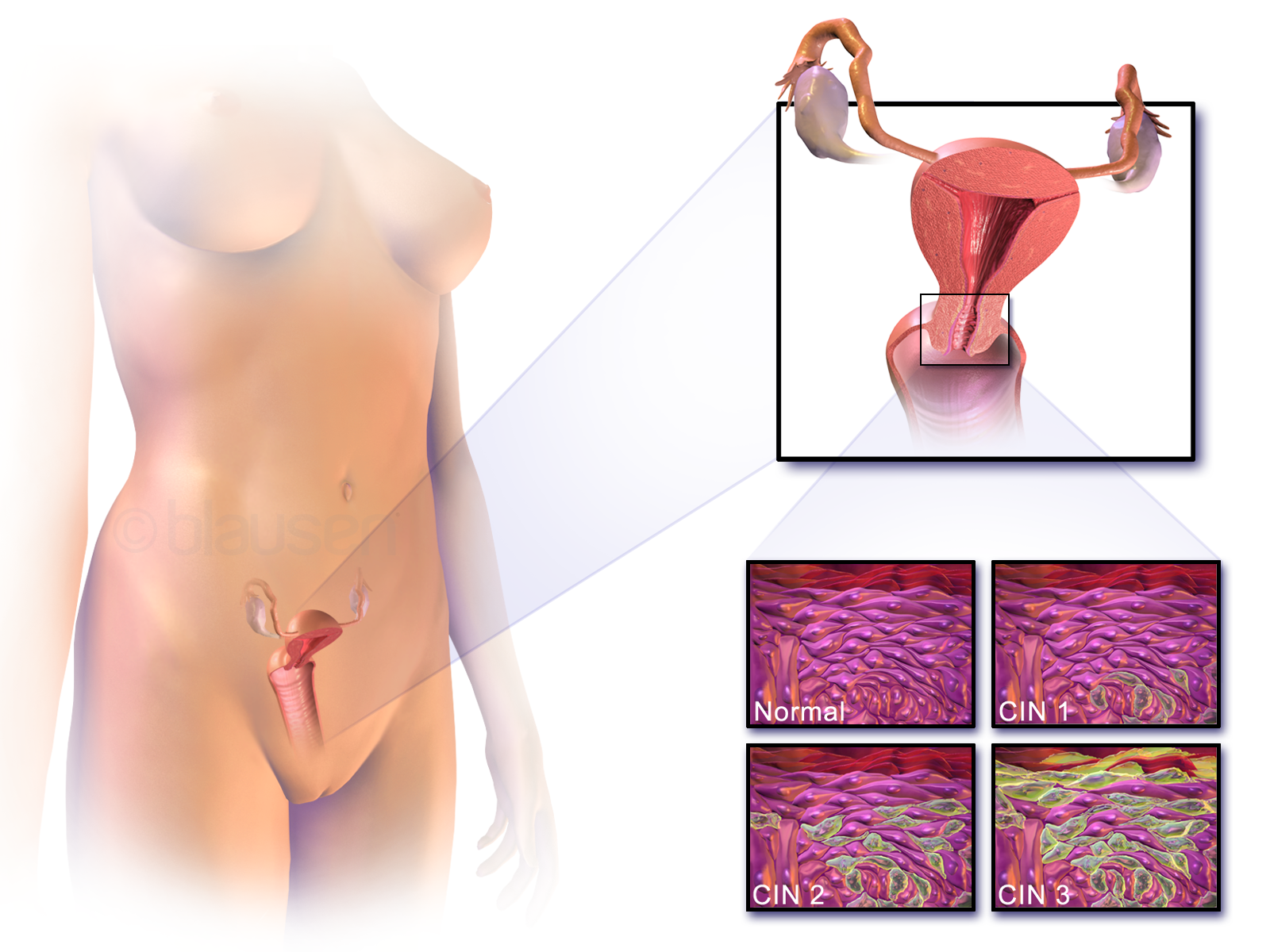 hpv definition and symptoms din pastile papiloame