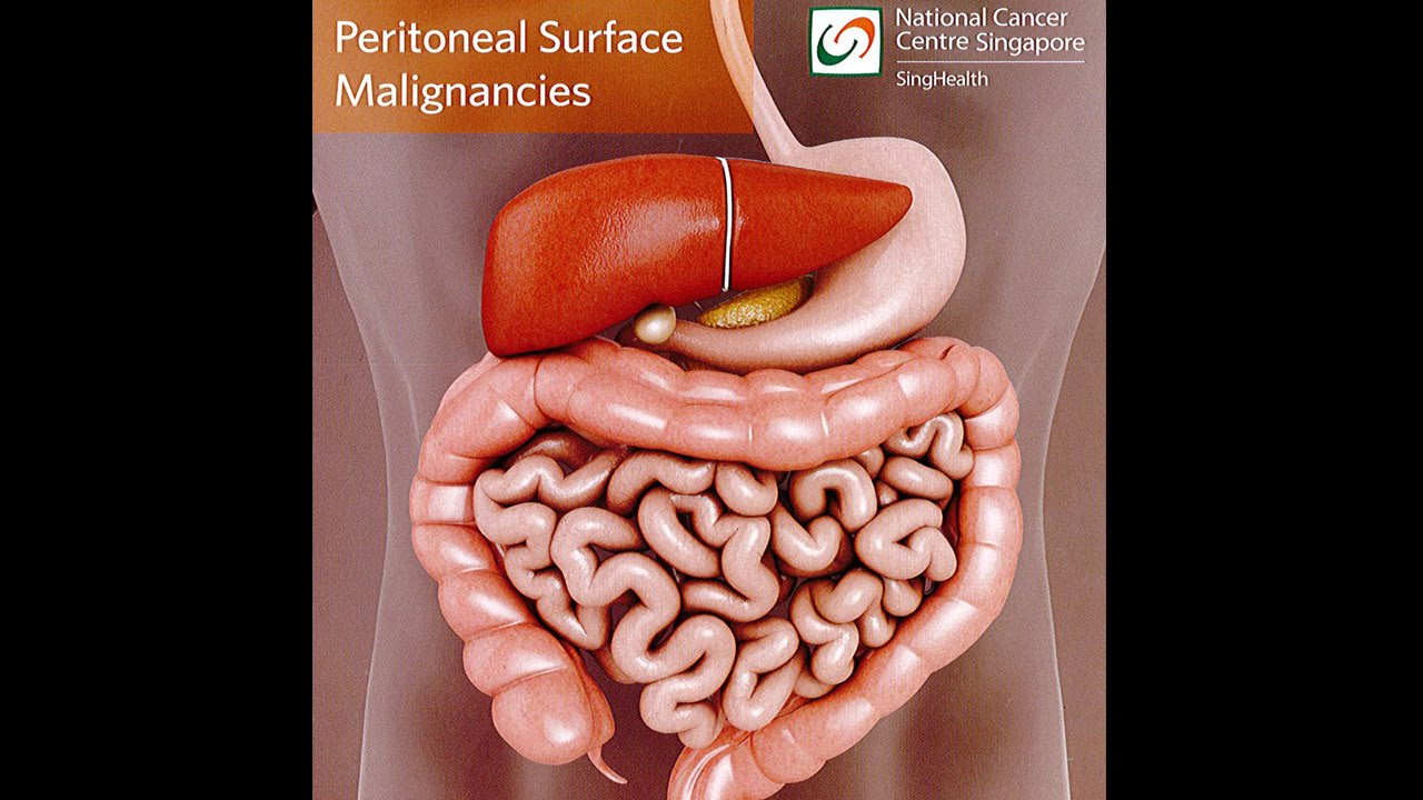 peritoneal cancer end of life symptoms cancer peritoneal survival rate