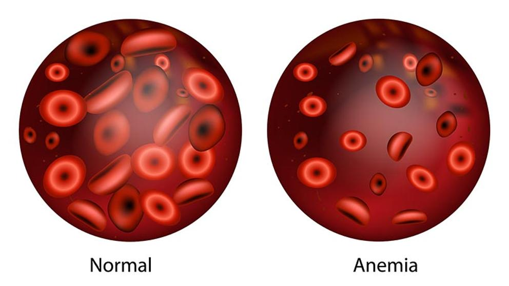 anemia que es infecție giardia nhs