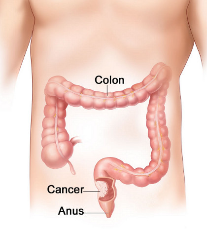 cancer colon drept simptome