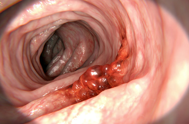 Aggressive cancer growth - Aggressive cancer in colon