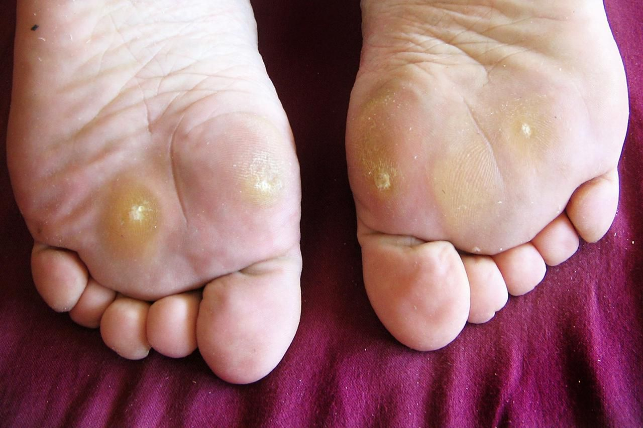 wart on foot sole painful)