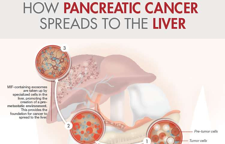 pancreatic cancer with liver lesions