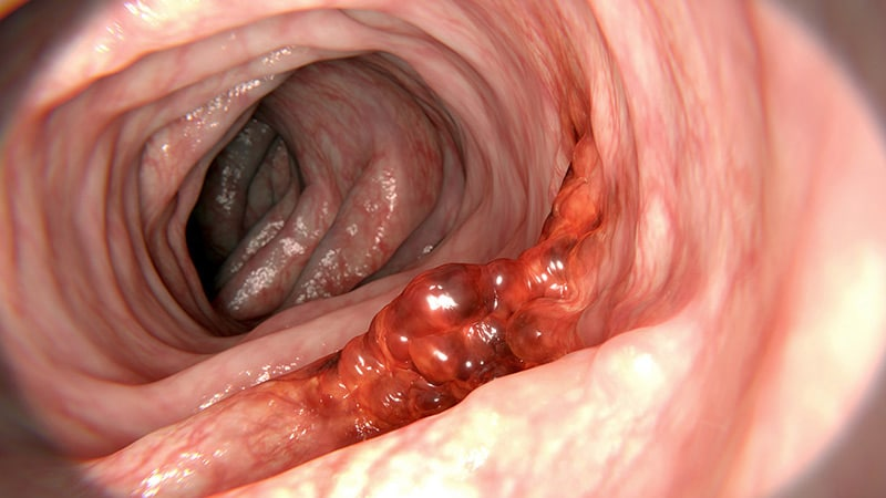 colorectal cancer hpv)
