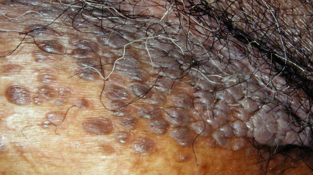 hpv causes moles
