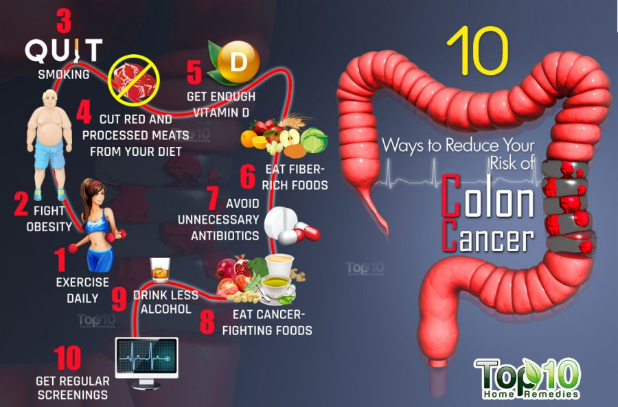 colorectal cancer overview