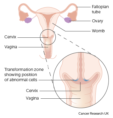 hpv treatment abnormal cells