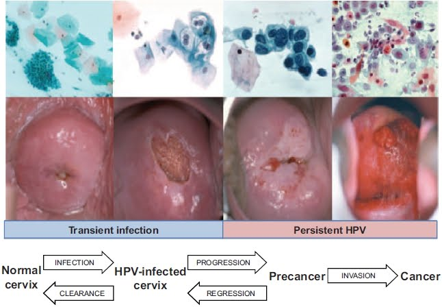hpv causes abnormal cells human papillomavirus 16 positive