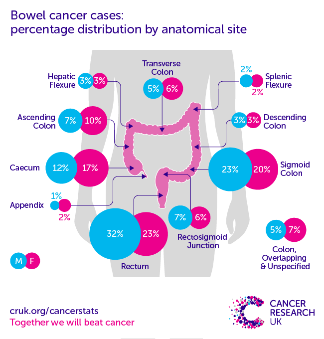 colorectal cancer 4 type